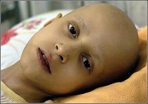بچه های سرطانی